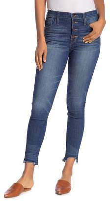 Madewell Distressed High Rise Button Skinny Jeans