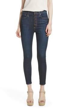 Alice + Olivia AO.LA by AO.LA Good High Waist Exposed Button Skinny Jeans