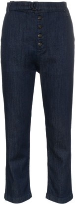 3x1 Vic Button detail chinos