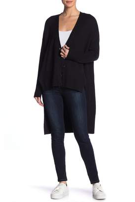 1 STATE 1.State V-Neck Hi-Lo Button Front Sweater
