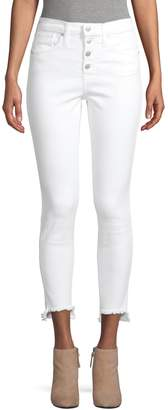 Madewell High-Rise Button-Fly Skinny Jeans