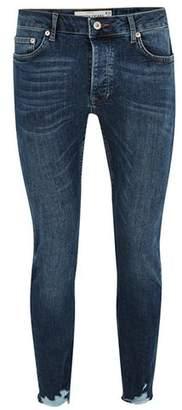 Topman Mens Mid Blue Marble Raw Hem Skinny Jeans