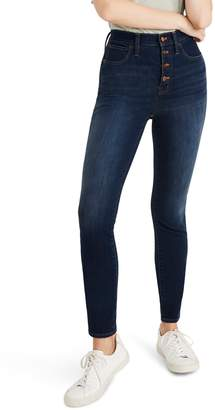 Madewell 10-Inch High Waist Skinny Jeans: Button Front Edition