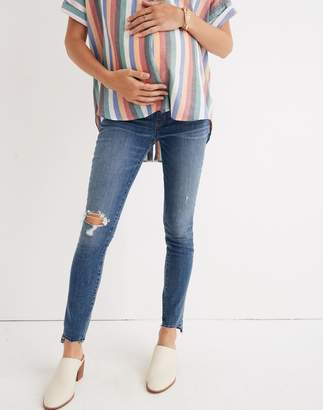 Madewell Maternity Skinny Jeans in Everton Wash: Adjustable Edition