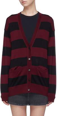 Alexander Wang 'Wash & Go' stripe Merino wool blend cardigan