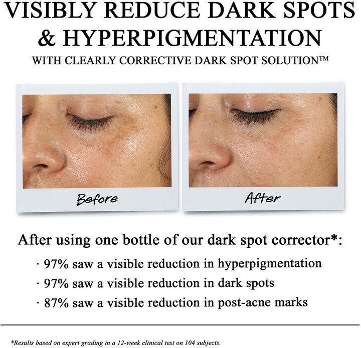 Kiehl\'s Since 1851 - Clearly Corrective Dark Spot Solution detail image