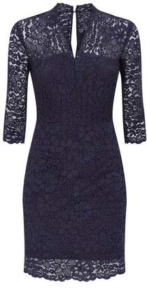 SET Lace Dress