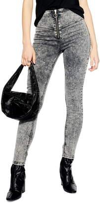 Topshop Acid Wash Zip High Waist Jeans