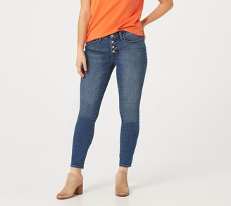 NYDJ Ami Ankle Exposed Button Fly Jeans - Lazaro