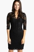 Karen Kane Women's Scalloped Lace V-Neck Dress
