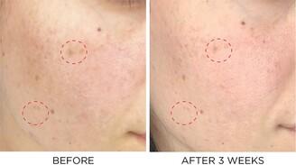 Dr. Brandt Skincare Dark Spots No More Triple Acid Spot Minimizing Concentrate