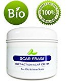 Honeydew All Natural Scar Removal Cream for Face Legs & Body - Scar Cream for New Scars Old Scars & Stretch Marks - Anti Aging Cream for Men & For Women with Kokum Butter and Antioxidants Vitamin E - 4 Oz