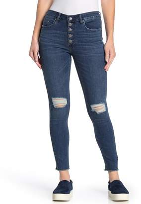 Vigoss Ace Exposed Button Distressed Skinny Jeans