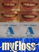 Gap Orthodontic Elastic Teeth Bands &floss - Size 1/8 Heavy - 100 Bands - For Lower Teeth Or Smaller Upper Teeth