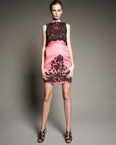 Lace Twin-Layer Dress