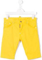DSQUARED2 casual shorts - kids - Cotton/Spandex/Elastane - 14 yrs