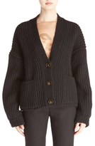 Acne Studios 'Hadlee' Chunky Knit Button Cardigan