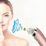 KINGEAR Electric Pore Cleanser Exfoliates and Resurfaces the Skin and Utilizes Pore Vacuum Extraction