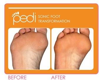 clarisonic 'Pedi' Sonic Foot Transformation ($310 Value)