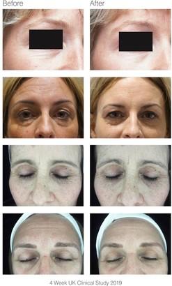 Rio faceLITE beauty boosting LED face mask