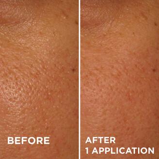Dr. Brandt Skincare PoreDermabrasion Pore Perfecting Exfoliator
