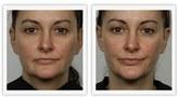 Nuface 'Trinity' Facial Toning Device