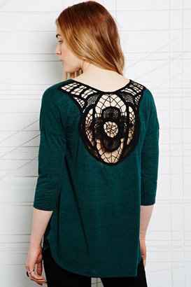 Staring at Stars Trim Back Tunic