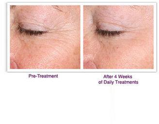 Palovia Skin Renewing Laser